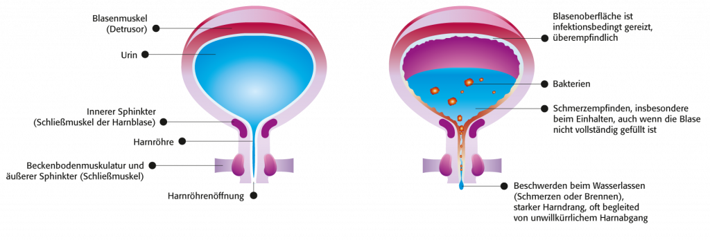 Blasenentzündung harndrang männer