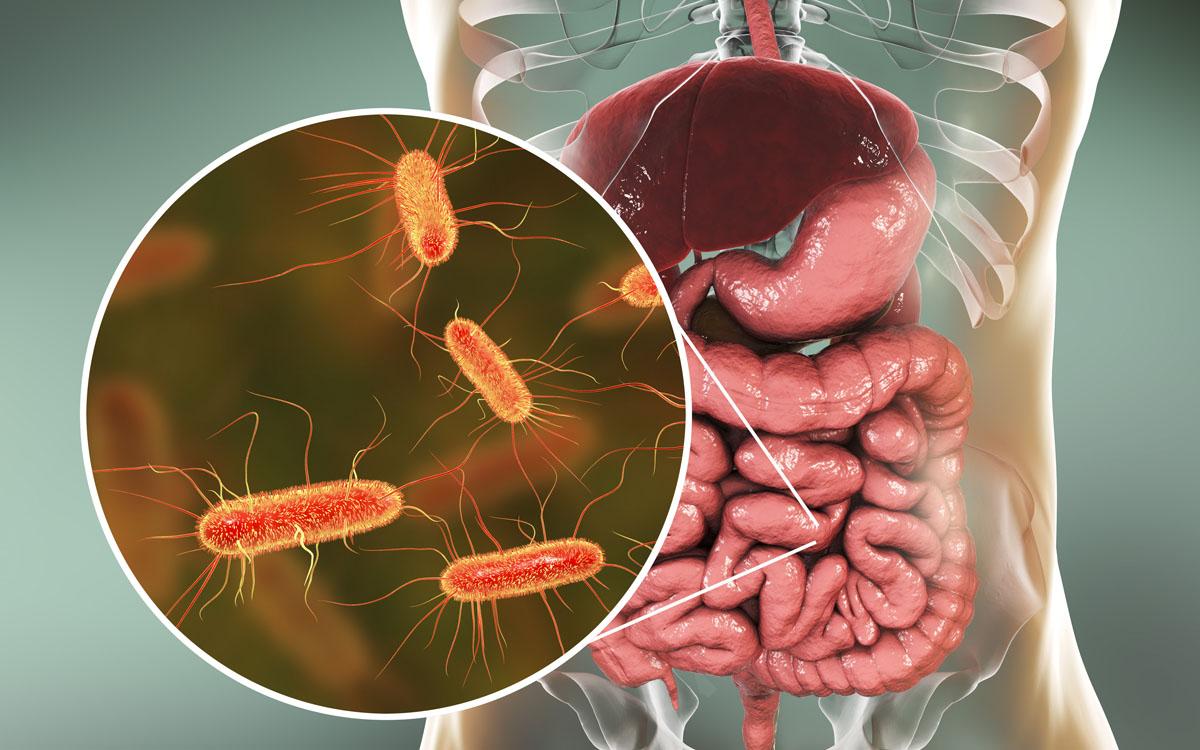 E. coli-Bakterien in vergrößerter Abbildung vor der Grafik eines menschlichen Darms